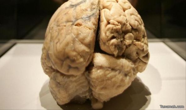 #دراسة :  #دماغ_الإنسان يتقلص أثناء اليوم ويمتص الرطوبة