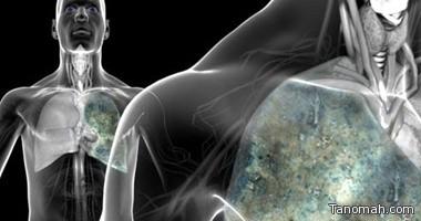 وكالة بحوث دولية: سرطان الرئة أقوى الأورام القاتلة للمرأة بالدول الغنية