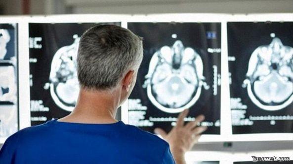 فحوص الأشعة المقطعية تكتشف الاكتئاب قبل الإصابة به