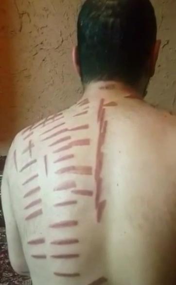 """بالـ #فيديو: تشويه جسد مريض """"رعاش"""" على يد معالج #شعبي"""