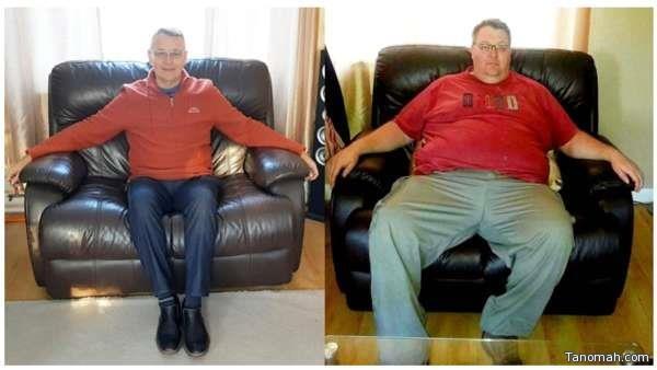 أشبه بالمعجزة.. فقد 80 كيلو من وزنه باتباعه نظاماً صحياً بسيطاً