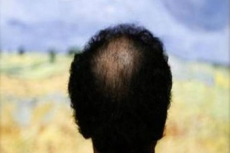 مجموعة أطعمة قد تكون السبب في تساقط الشعر